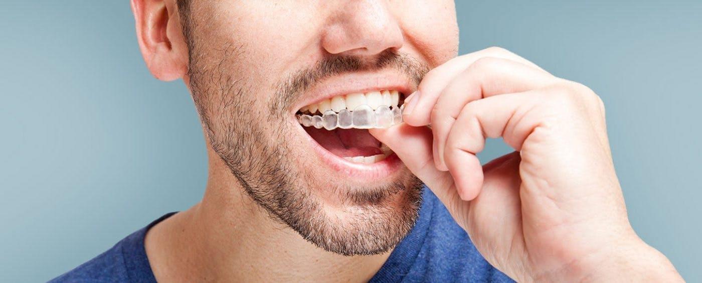 Soins dentaires au meilleur prix Hongrie Maroc