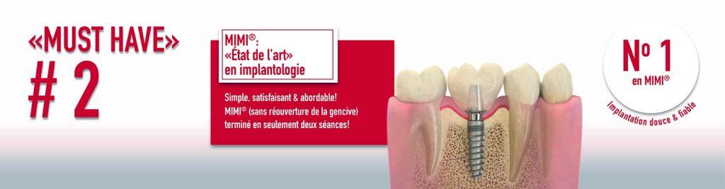 meilleur implant Tanger