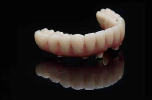 Meilleur prothese-sur-implant Tanger-Maroc- France