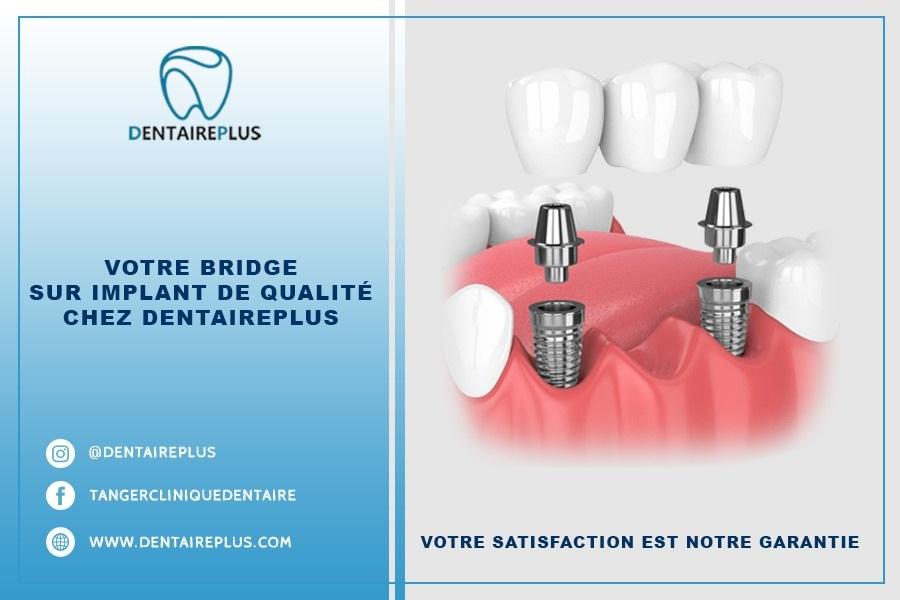 Meilleur bridge sur implants au Maroc de qualité promotion