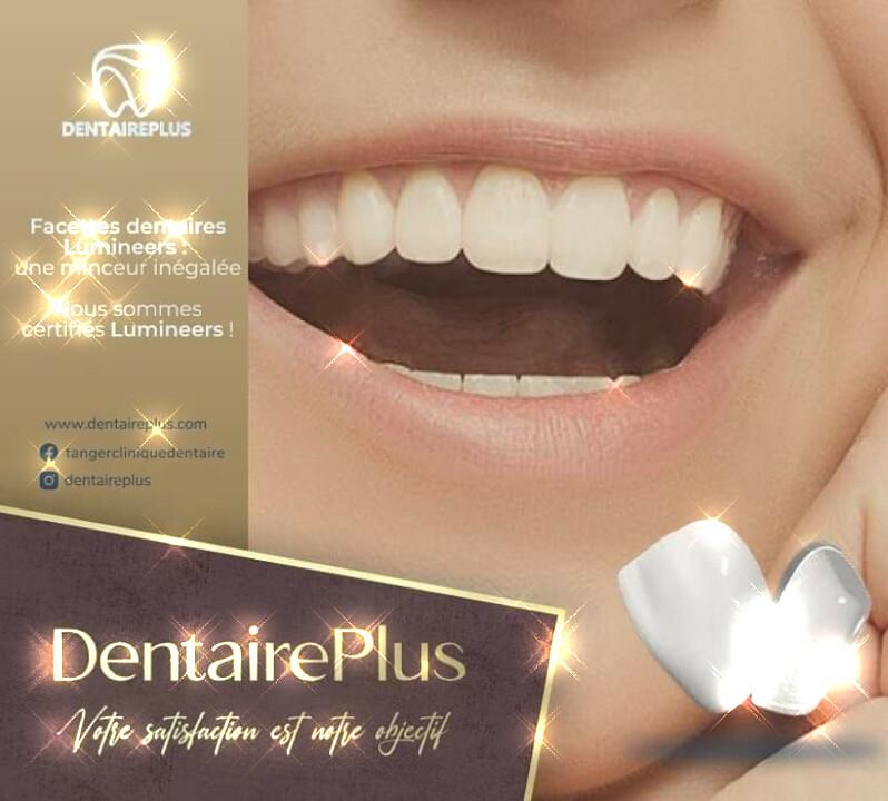 meilleur facette dentaire Maroc Casablanca Tanger