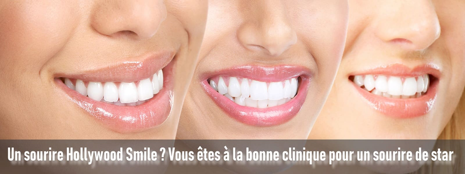 facette-dentaire-au-meilleur-prix Tanger Maroc