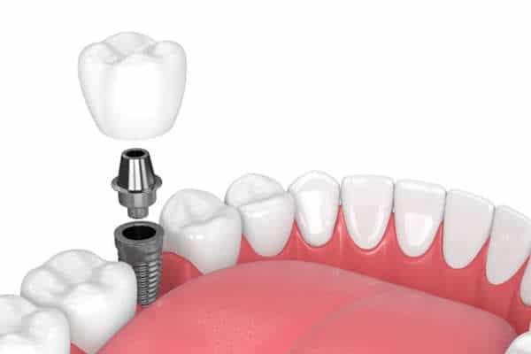 Meilleur prix implants dentaires Maroc Tanger