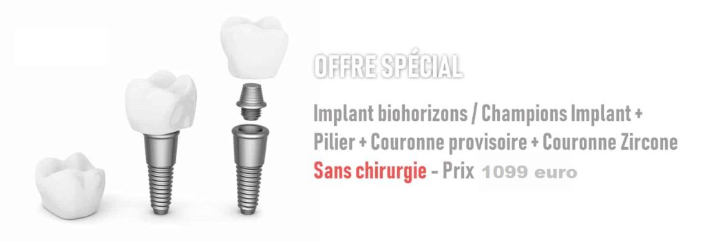 meilleur prix implants Tanger