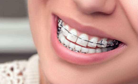 clinique dentaire à Tanger Orthodontie enfant